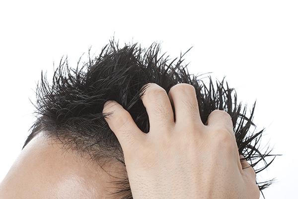 男性型脱毛症とは